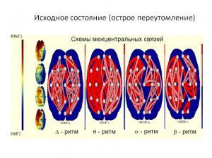 neurolabru1