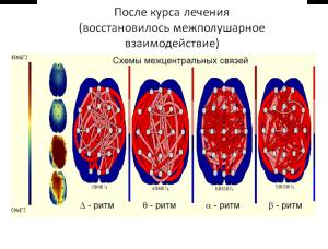 neurolabru2